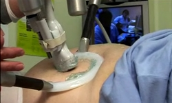 The robotic arm on the patient's abdomen. Credits : CNES.